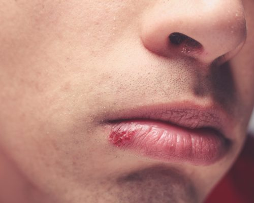 Psoriasis and cold sores, the most stigmatized skin disorders: Study