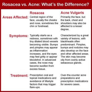 Comparing Rosacea and Acne: Signs and symptoms