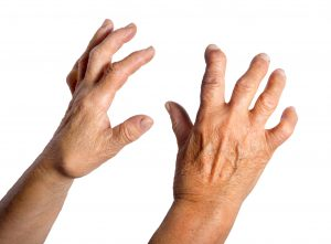 Rheumatoid arthritis and skin complications