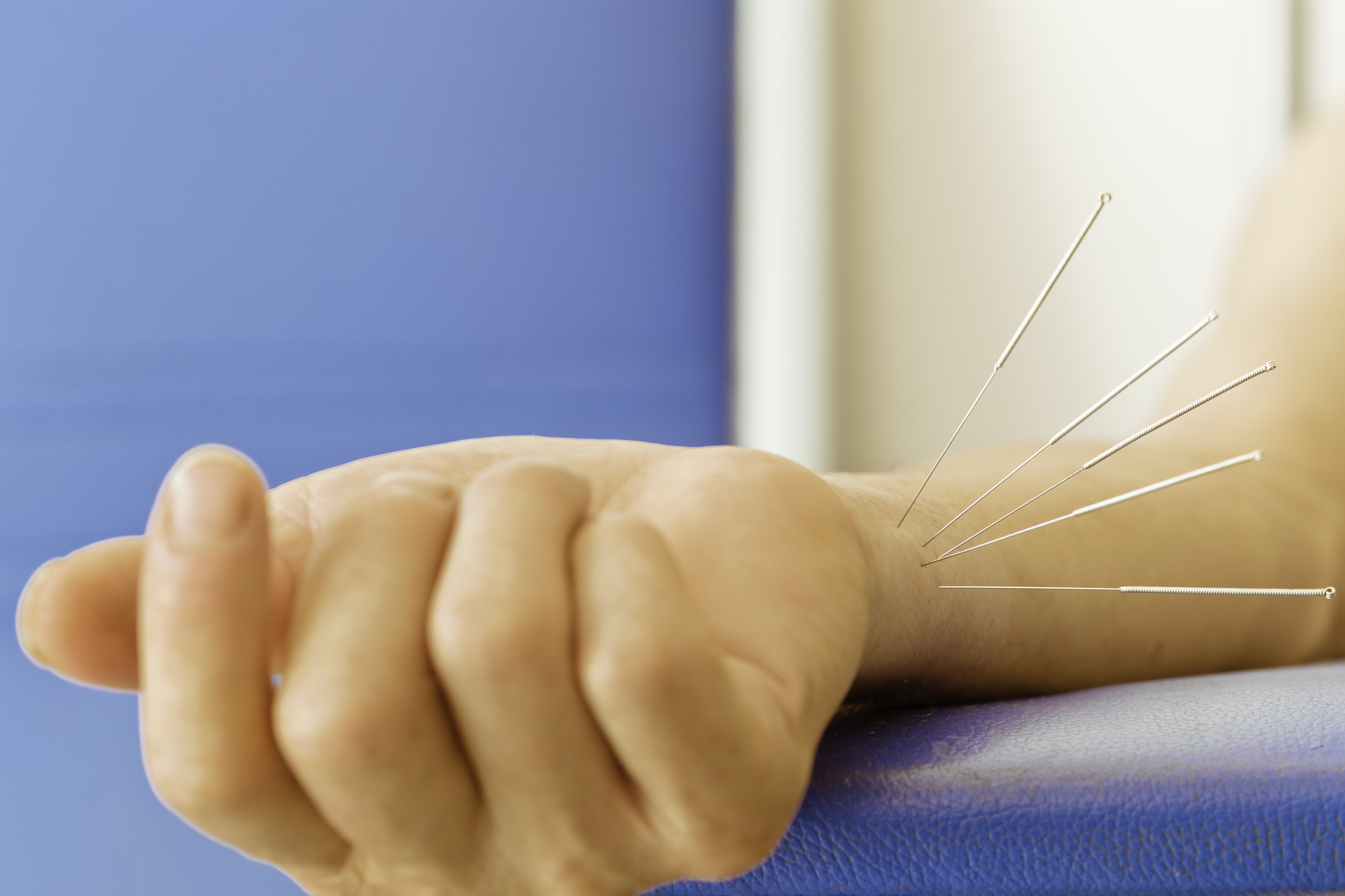 Carpal tunnel syndrome (CTS) eased with electroacupuncture