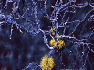Alzheimer's disease and type 2 diabetes share amyloidosis link