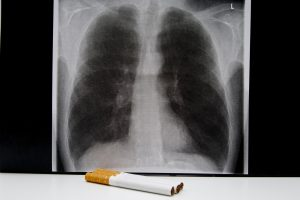 Asthma Vs Copd Differences In Symptoms Causes And
