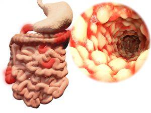 Crohn S Disease Ulcerative Colitis Progression And