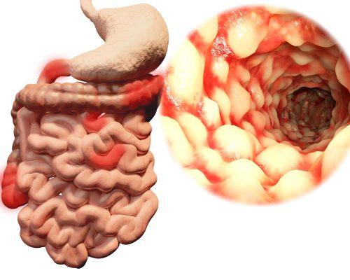 "Crohn's disease, ulcerative colitis progression and development linked to ""creeping fat"": Study"