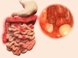 crohn disease ulcerative colitis colon cancer