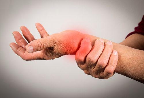Natural Remedies For Deformity Cause By Rheumatoid Arthritis