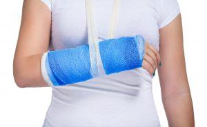 Kidney stones may increase fracture and broken bone risk