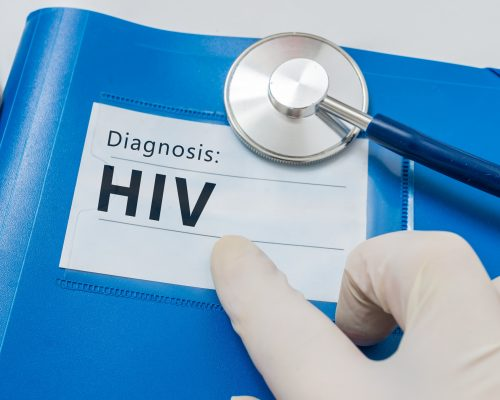 Multiple sclerosis risk lower in HIV-infected patients: Study