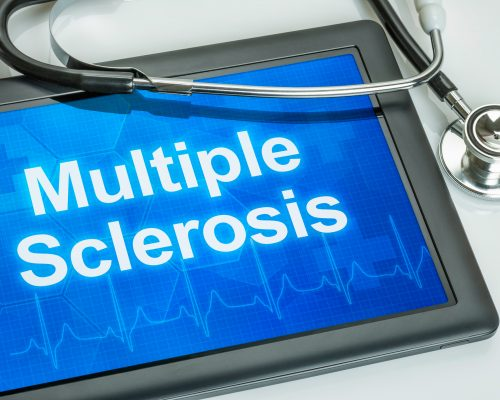 Multiple sclerosis vs nmo