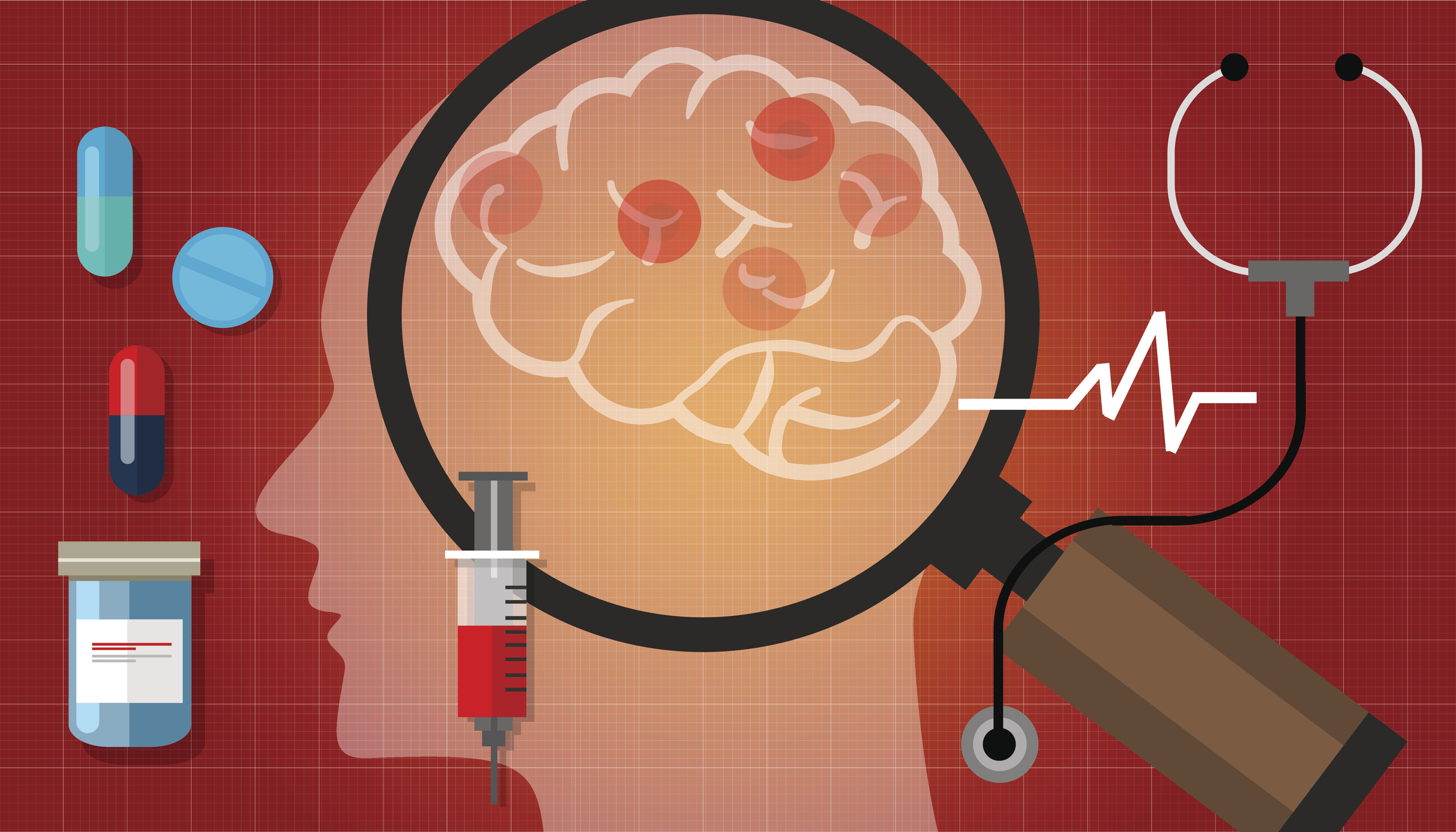 Multiple sclerosis vs parkinson disease