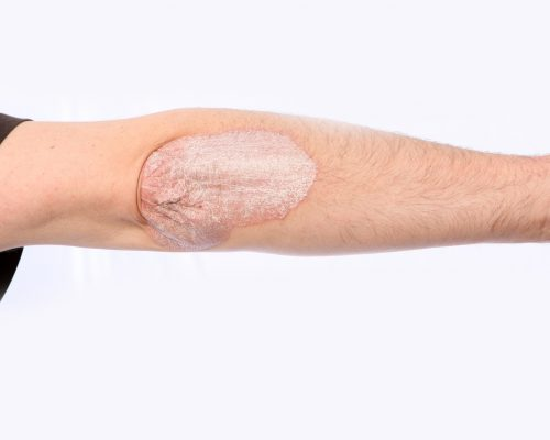 New psoriasis drug found to work longer