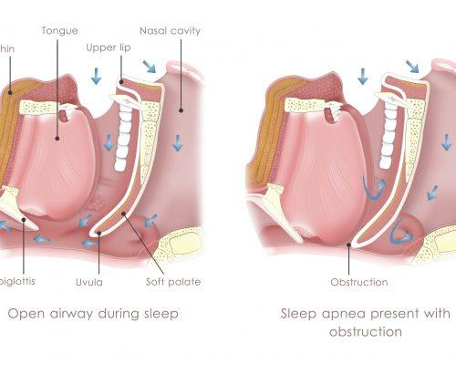 Obstructive sleep apnea risk increases with asthma: Study