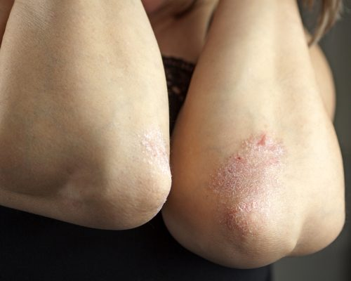 Psoriatic arthritis risk higher in psoriasis