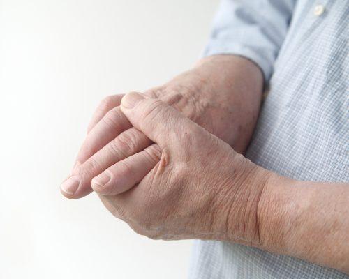 Rheumatoid arthritis patients face higher gout risk