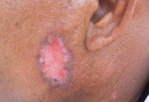 psoriasis ringworm