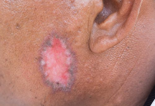 Psoriasis vs  ringworm, differences in symptoms, causes, and