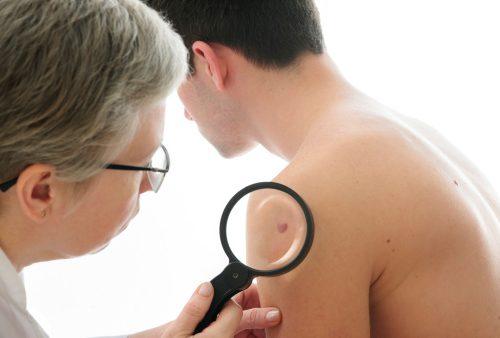 Vitiligo may predict immunotherapy response in melanoma patients