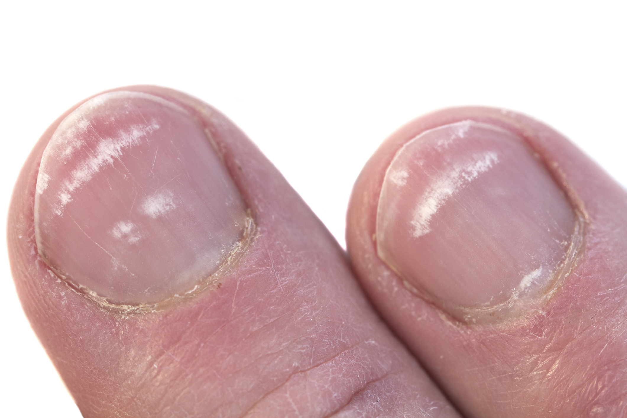 white spots on nails leukonychia
