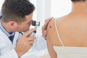 Celiac disease is not a colon cancer or melanoma risk factor