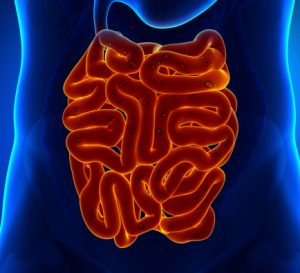 Crohn's disease vs. diverticulitis: Causes, symptoms, risk factors, and complications