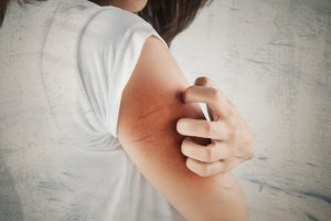 Eczema effects span beyond the skin surface