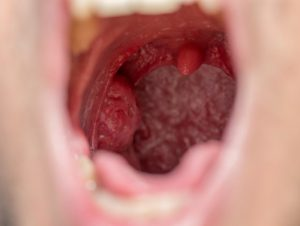 Enlarged uvula can lead to snoring and obstructive sleep apnea