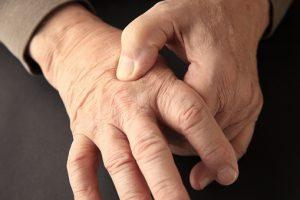 Fibromyalgia vs. peripheral neuropathy