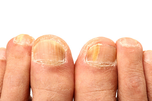 how long is ringworm contagious fungus foot