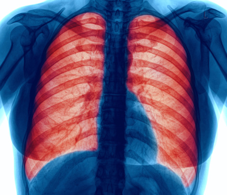 In COPD patients, pneumonia survival in hospitals improved with inhaled corticosteroids: Study
