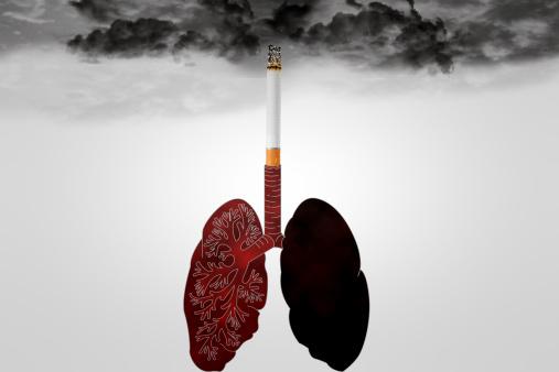 pneumonia vs lung cancer