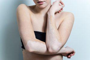 Psoriasis vs. vitiligo