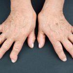 Osteoporosis vs. rheumatoid arthritis: Causes, symptoms ...