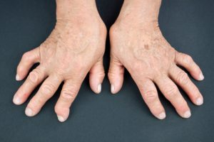 Rheumatoid Arthritis And Feet The Connection And Feet