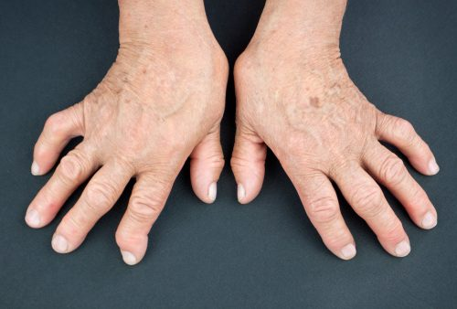 psoriatic arthritis vs. rheumatoid arthritis