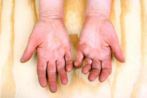 Rheumatoid arthritis cause and prevention may be linked to gut bacteria: Study
