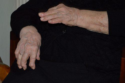 rheumatoid arthritis biologics treatment reduce cardiovascular risk