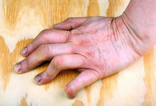 Rheumatoid arthritis vs. lupus: Causes, symptoms, risk factors, and complications
