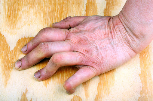 Rheumatoid arthritis vs. lupus: Causes, symptoms, risk factors, and complications