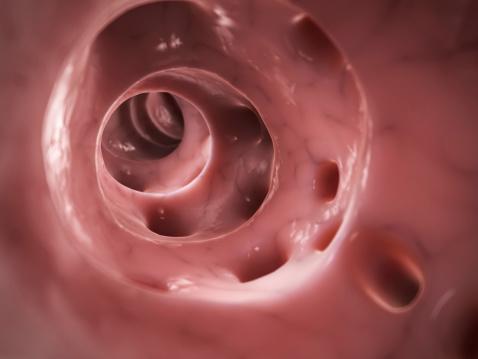 ulcerative colitis vs. diverticulitis