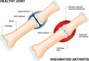 Vagus nerve stimulation eases arthritis: Study
