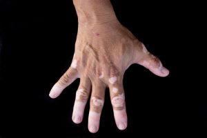 vitiligo skin dispigmentation