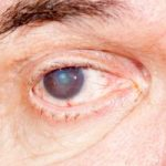 Cataract risk increases with chronic sunlight exposure: Study