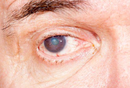 cataract increases with uv light exposure