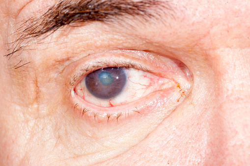 cataract increases with uv light exposure