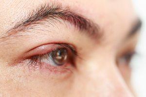 chalazion lump on the eyelid