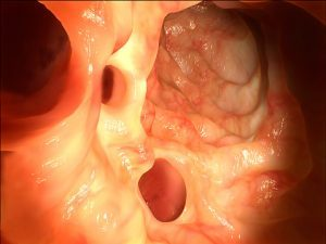 Diverticulitis patients reveal psychological, physical symptoms long after their acute illness has passed: Study