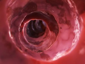 diverticulitis vs diverticulosis