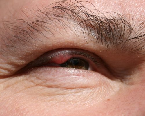 Eyelid inflammation (blepharitis) causes, symptoms, and