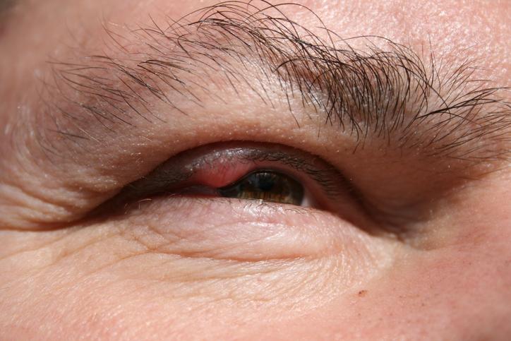 blepharitis eyelid inflammation