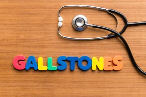 Heart disease risk associated with gallstones